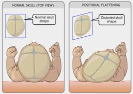 alteraciones craneales plagiocefalia