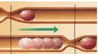 peristaltismo  cólicos Lactante